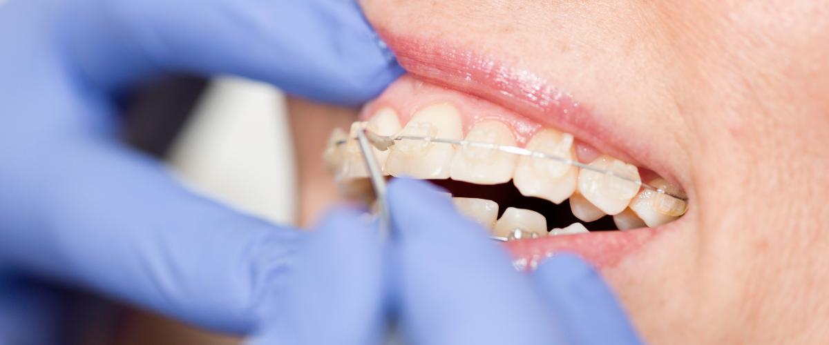 Kontrola keramických rovnátek u ortodontisty