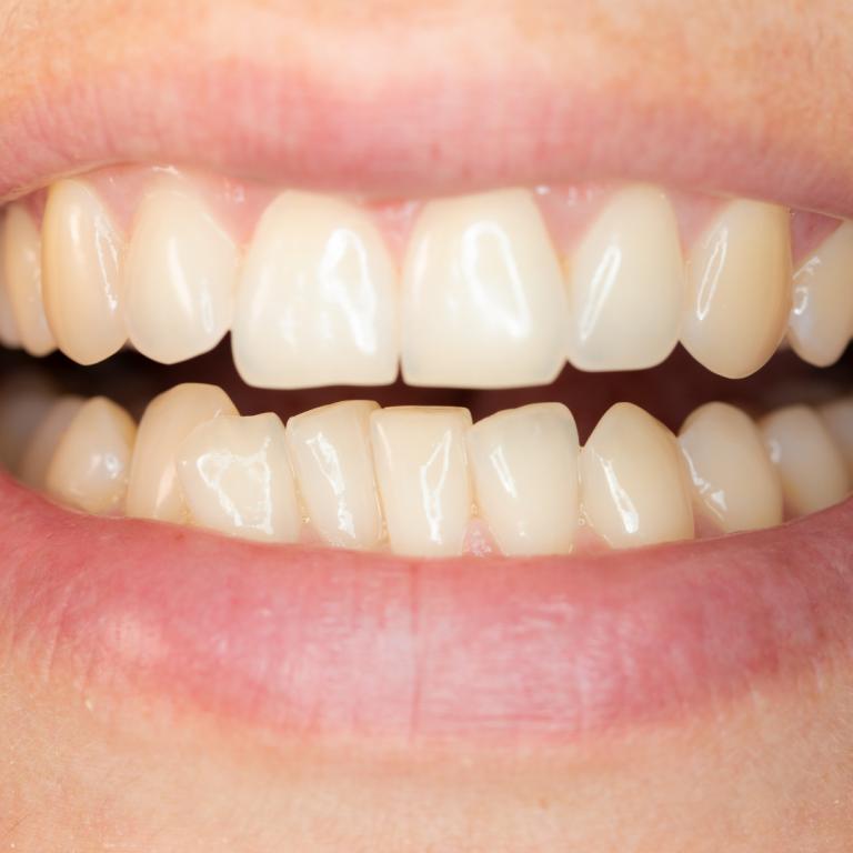 Ortodontické vady