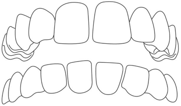 Mezery mezi zuby