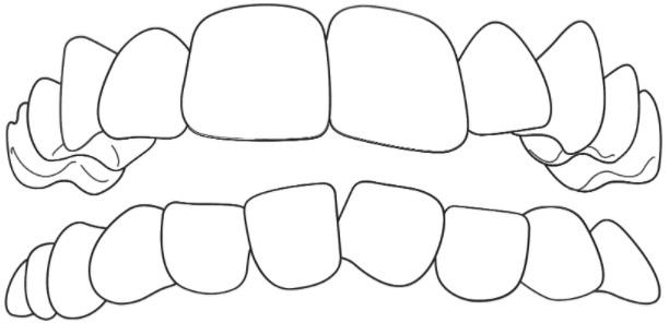 Stěsnané zuby