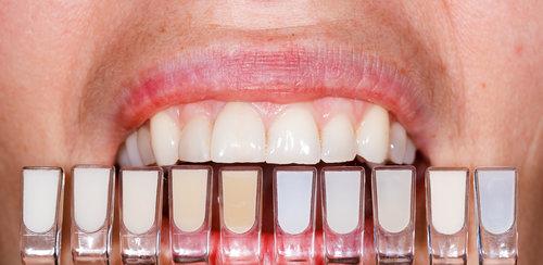 Bělení zubů   Svět rovnátek